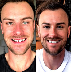 """Damn, my fiancé has a killer set of pearly whites WonderSmile has honestly changed his life! I can't believe how quickly @brandonb_pt 's teeth have straightened!"" - @caseebrim 💙"