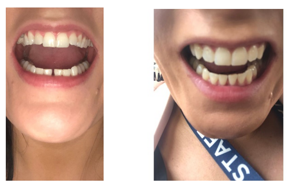 WonderSmile Before and After Clear Aligner Treatment