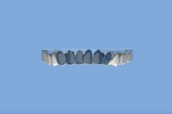 Teeth crowding and how to fix crowded teeth