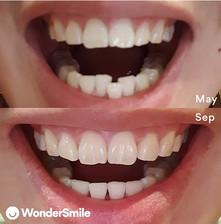 """""""優質嘅客戶服務, 我對於療程嘅效果10分滿意並高度推薦WonderSmile給所有希望矯正牙齒的人。""""  - Brandon Ngo @brandon_ngo"""