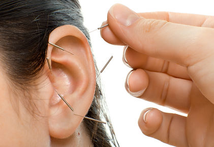acupuncture therapy on auricle, horizont