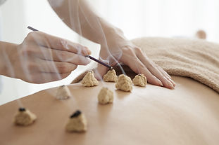 Women who are prescribed the moxibustion