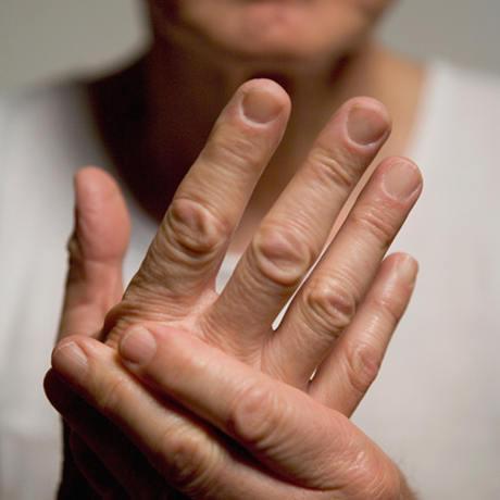 Joints | Nerves | Pain | Arthritis