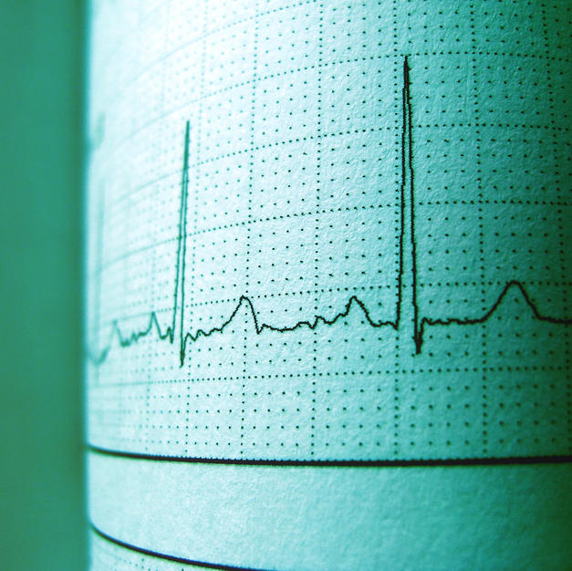 Heart | Circuation | Vasculature