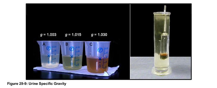 29-09-urine density.jpg