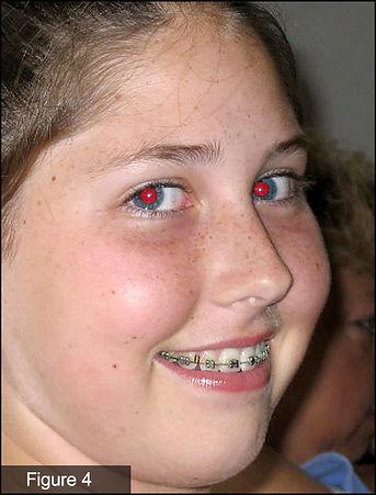 SF-red eye.jpg