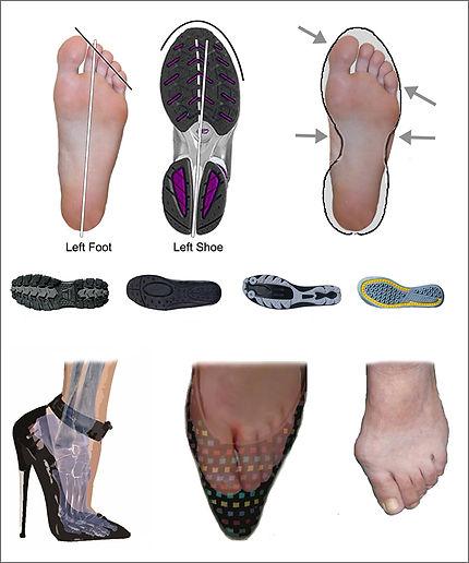 SF-foot-shoe.jpg