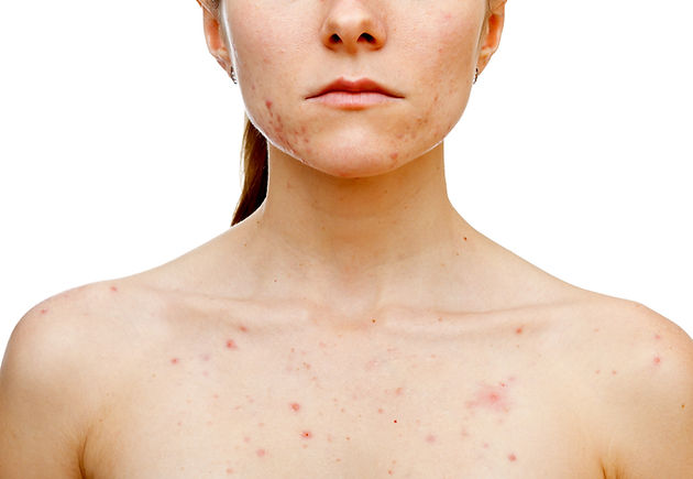 woman-with-acne.jpg