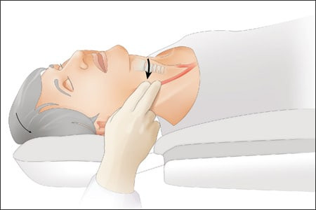 Basic Life Support(BLS) & Cardiopulmonary Resuscitation (CPR)