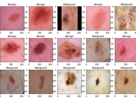 Use of Machine Learning in detecting Skin Cancer.