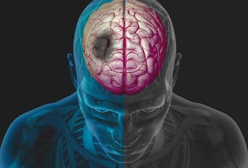 stroke-simulation.jpg