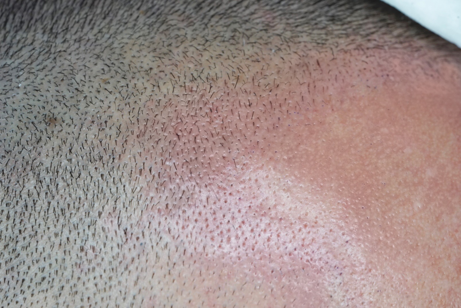 Filler for receding hairline