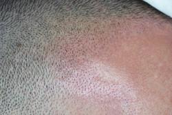 Filler for receding hairline