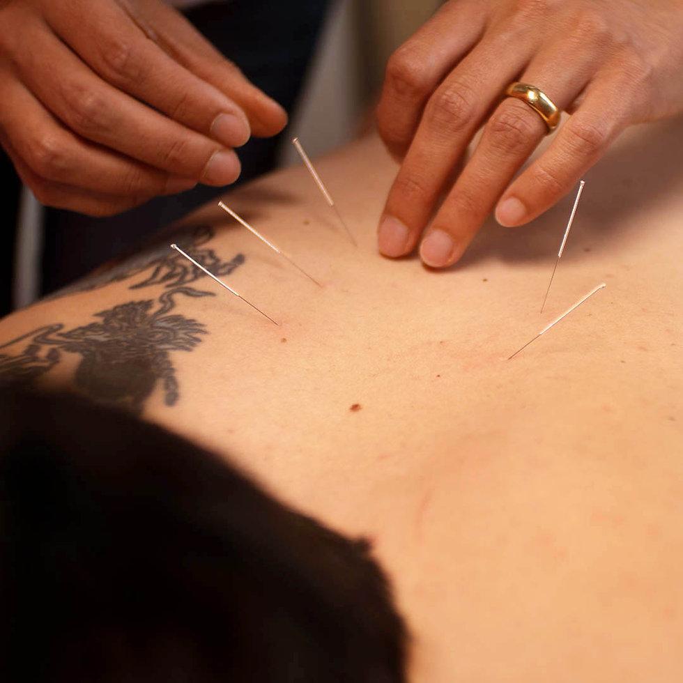 Akupunktur_2 max.jpg