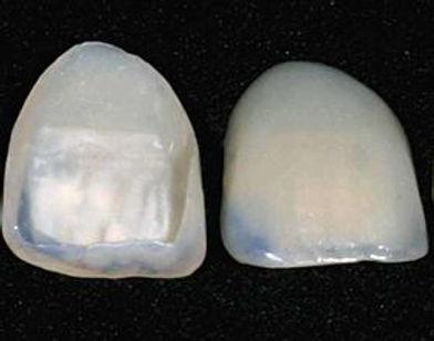 Dental_veneer.jpg