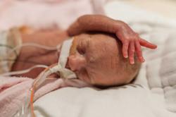 intubated premature baby
