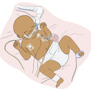 bb-EATF-intubated-01-EDIT2.jpg
