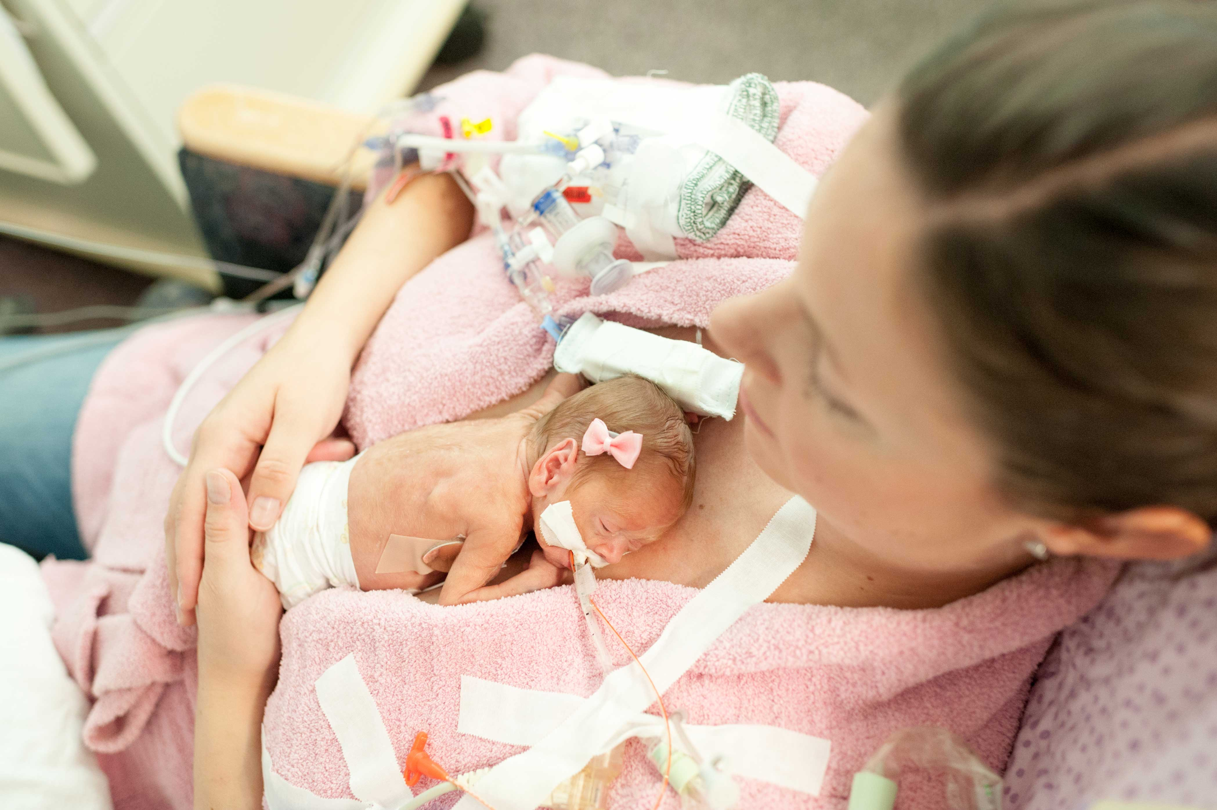 kangaroo care on a ventilator