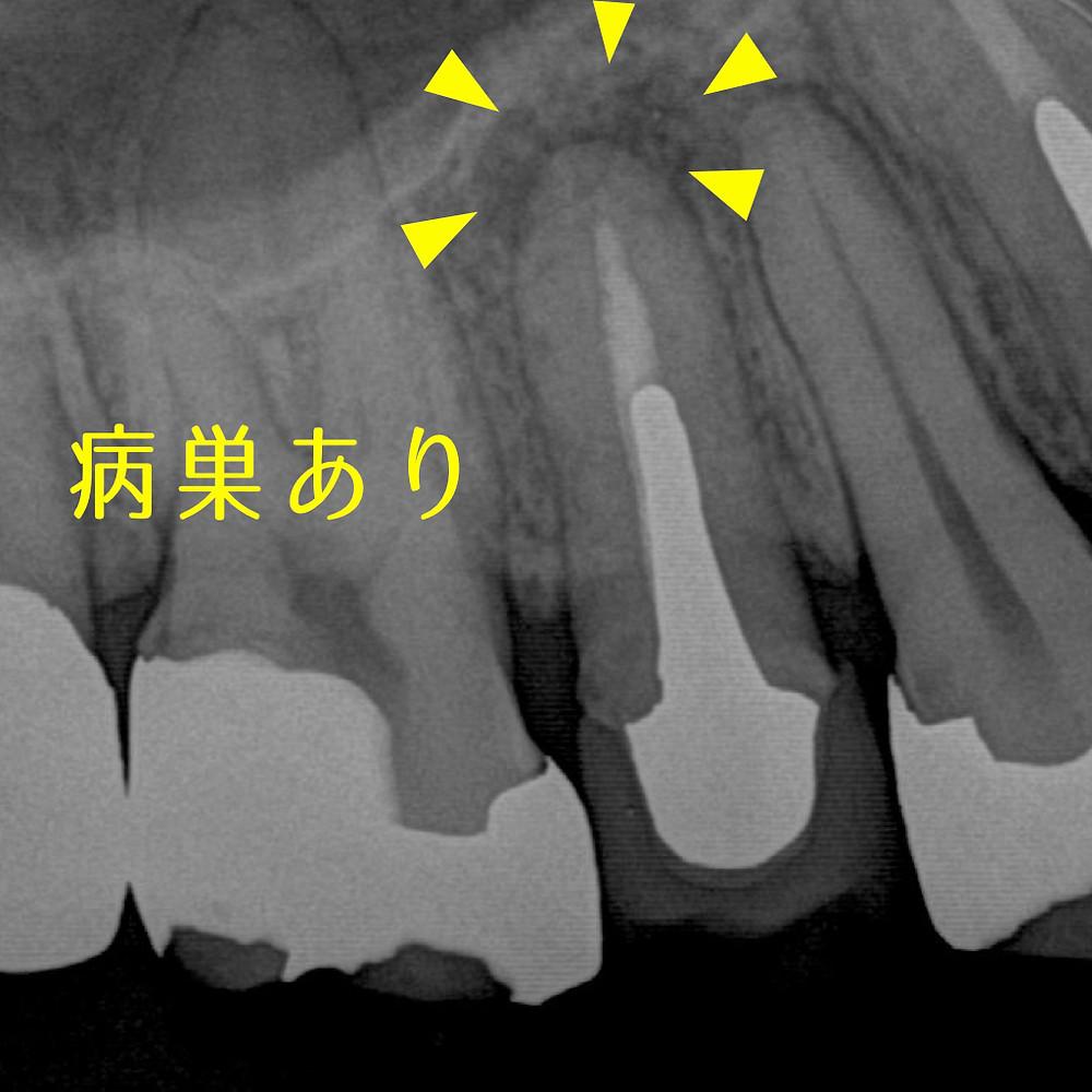 みやぎ歯科室 根尖病巣