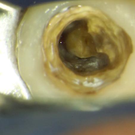 樋状根の根管治療