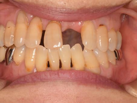 たった1日で白い歯ができます。
