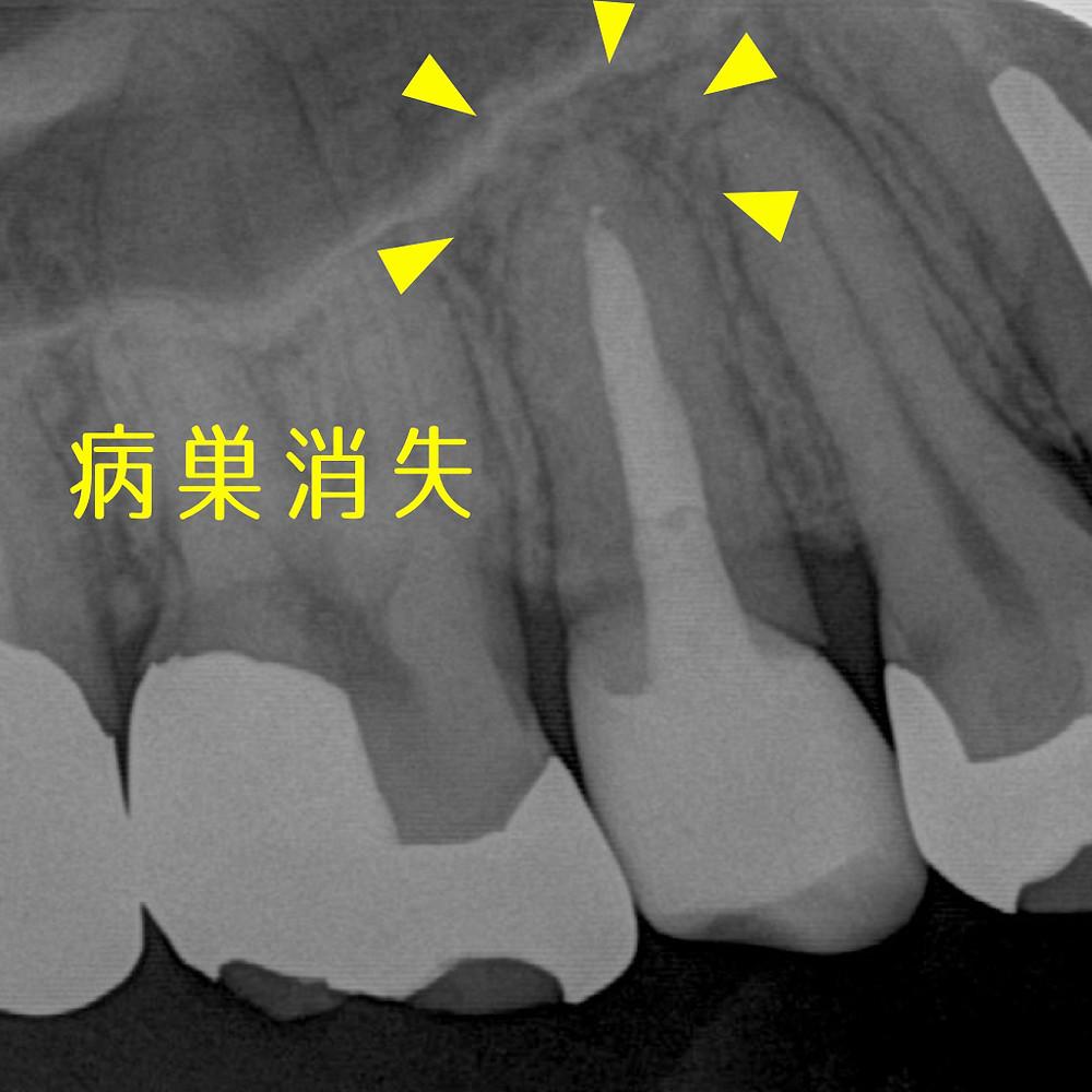 根尖病巣消失 みやぎ歯科室