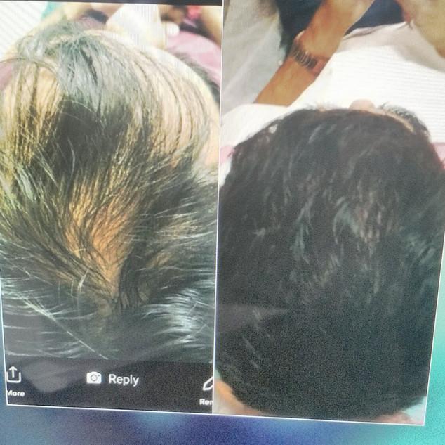 hairloss2.jpg