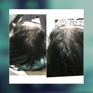 hairloss1.jpg