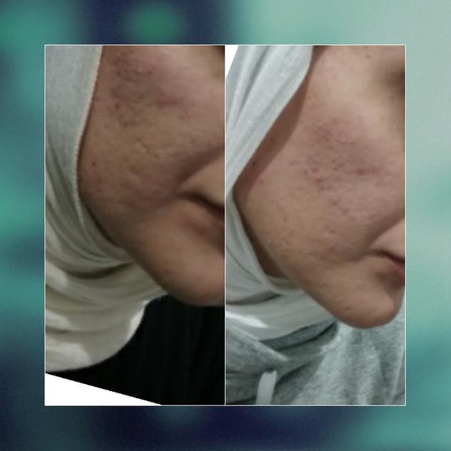 filler for acne scarring.jpg
