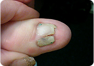 Learn how to avoid the nightmare behind bad nail care practices