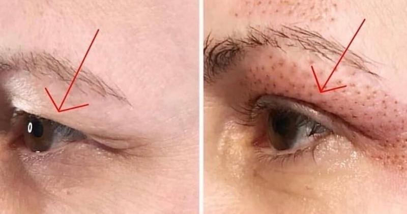 FibroLift Eyelids