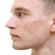 male acne.jpg