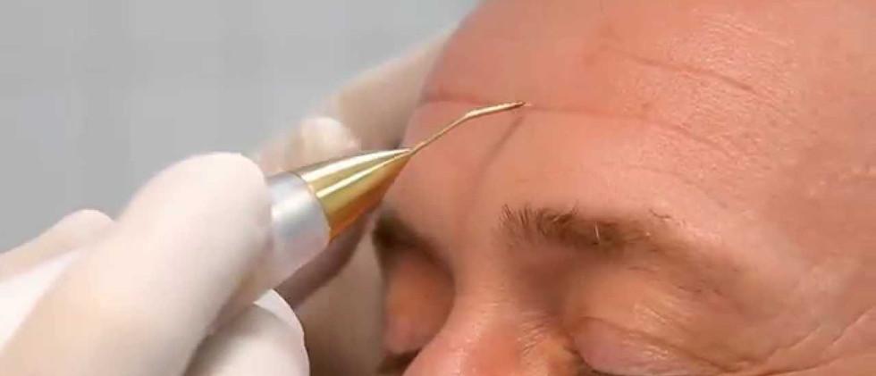 FibroLift Forehead