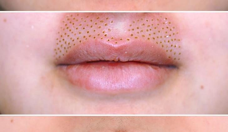 FibroLift Upper Lip