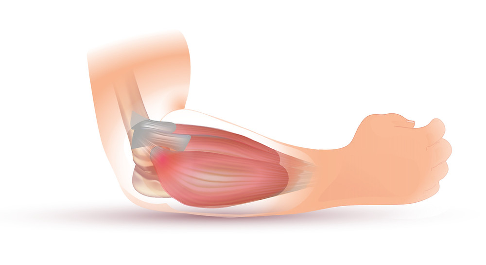 tennis elbow, wrist extensors, injury, musculature,