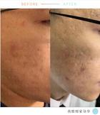 ⭕️暗瘡 after 20日左右 spot +lotion (2).jpg