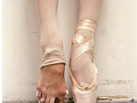Dancer's Foot:  Advances in Bunion Treatment