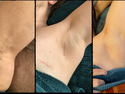 How does scar work therapy work?