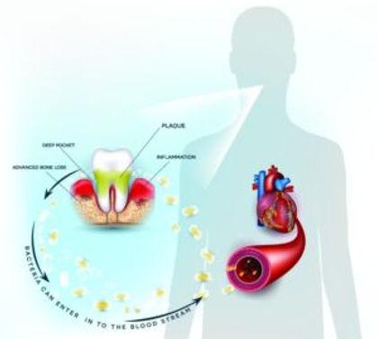 naples-periodontist-health-300x269.jpg