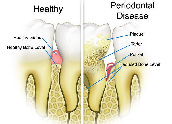 dental-implants-naples-fl.jpg