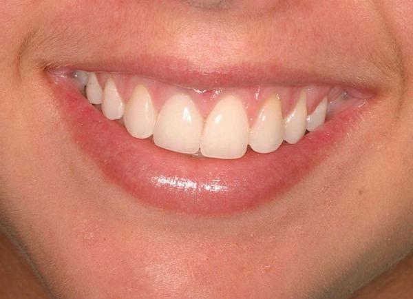 naples-dental-implants-after.jpg
