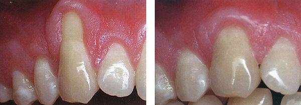 soft-tissue-graft-naples-1.jpg