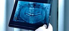 evaluate-periodontitis.jpg