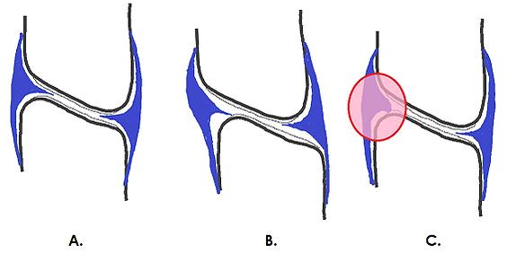 Synovial fold illustration