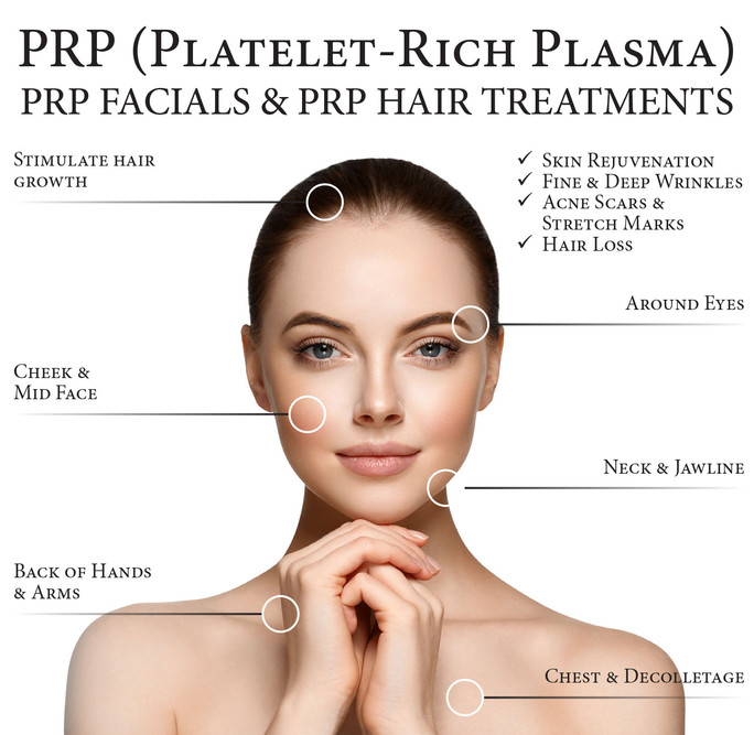 Platelet Rich Plasma (PRP) Therapy - The Vampire Facial