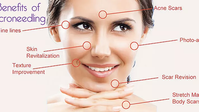 Microneedling & The Impressive Benefits!