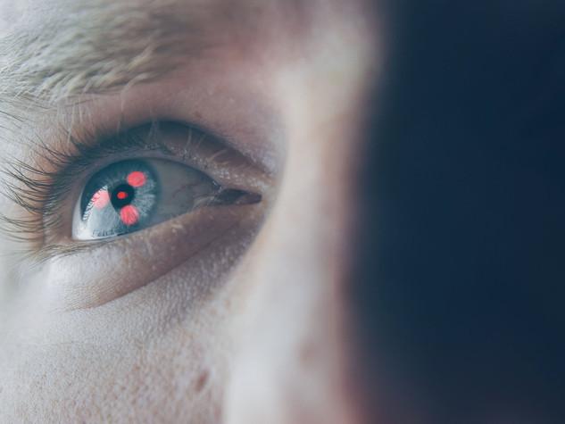 U-Eye