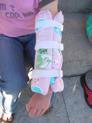 Arm Gaitor Splint