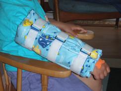 Single Arm Gaitor Splint