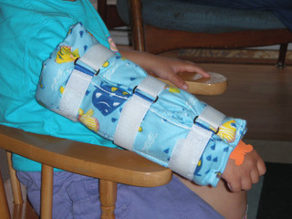 Single Arm Gaitor Splint